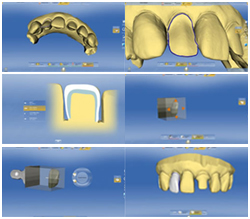 cerec_step2